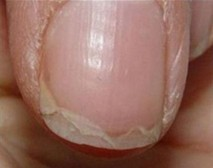 Plastljivi nohti nohti se cepijo